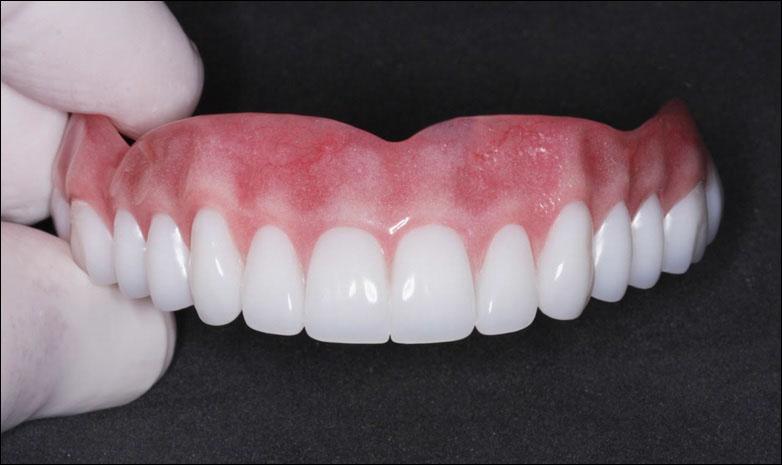 Зубные протезы в краснодаре цены