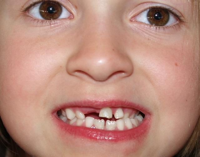 Молочный зуб у ребенка: как удалить вовремя?