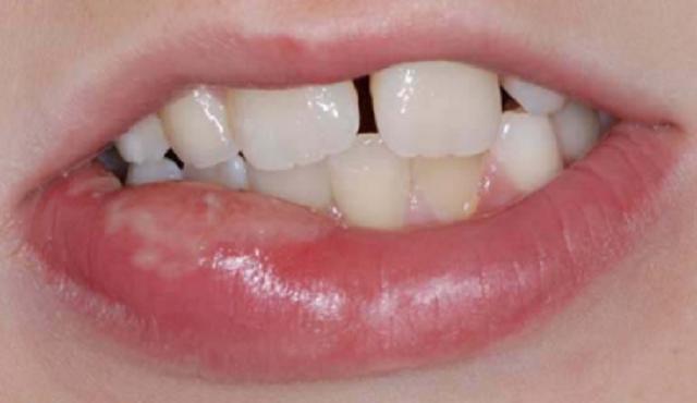 Ребенок искусал губу при анестезии