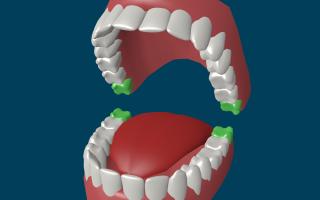 В каких случаях проводится лечение, а в каких — удаление зуба мудрости