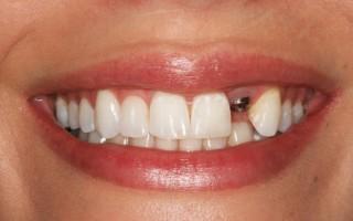 Какими симптомами проявляется отторжение зубного импланта