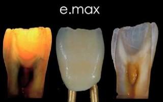Использование безметалловых коронок емакс