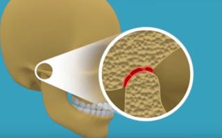 Что может привести к артриту височно-нижнечелюстного сустава и как этого избежать
