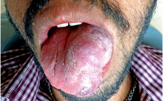 В связи с чем может опухнуть язык и как с этим бороться