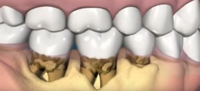 Что такое зубной камень и как с ним бороться
