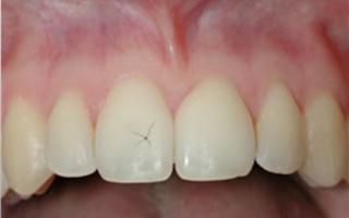 Почему возникает повреждение эмали зубов и как от него избавиться