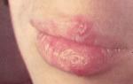 Симптомы и лечение герпетического стоматита