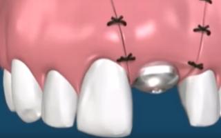 В каких случаях после имплантации зубов нужна пластика десны