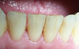 Как вылечить трещинки на эмали зуба