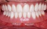 Что делать при натирании десны зубным протезом