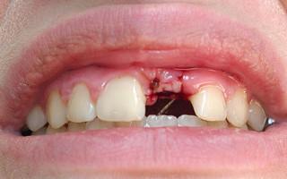 Какие существуют противопоказания для установки зубных имплантов