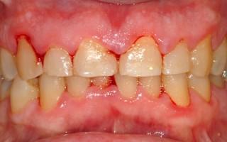 Почему появляется запах изо рта при кровоточивости десен