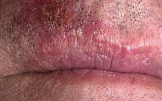Опасны ли гранулы Фордайса на губах