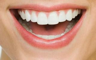 Люминиры для коррекции зубного ряда