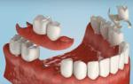 В каких случаях рекомендуется использование такого зубного протеза как бабочка