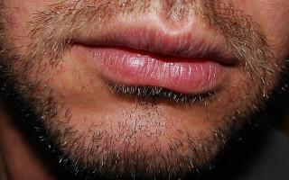 Почему могут чесаться губы и как с этим бороться