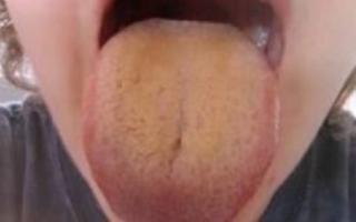 Основные причины появления коричневого налета на языке и надо ли с ним бороться