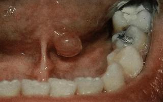 Почему появляется шишка под языком и как с ней бороться