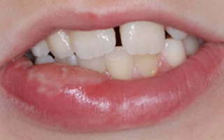Как избавиться от вредной привычки покусывания губ