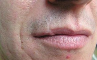 При помощи каких методов можно избавиться от шрама на губе