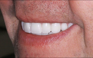 В каких случаях показано применение несъемных зубных протезов