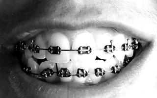 Необходимость удаления зуба мудрости для установки брекетов