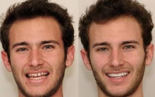 Как исправить винирами кривые зубы