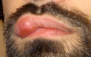 Причины, по которым может выскочить шарик на поверхности губ и его лечение
