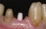 Почему необходимо проводить обточку зубов под коронку