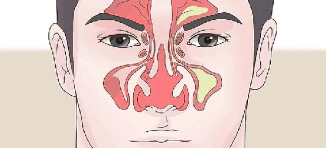 Правильное применение препаратов для промывания носа