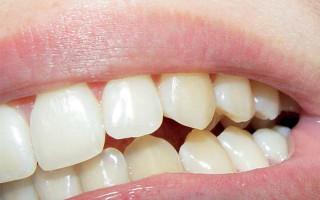 Подлежит ли восстановлению сломавшийся под коронкой зуб