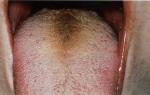 Какие причины могу привести к появлению черного волосатого языка