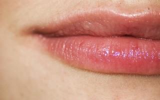 Что такое псориаз на губах и как с ним бороться