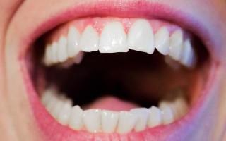 Восстановление эмали зубов: виды и как это сделать в домашних условиях