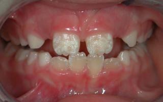 Что такое гипоплазия зубной эмали