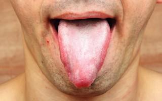 Из-за чего может появиться шершавый язык и чем это опасно