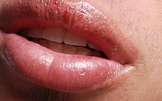 Как правильно бороться с ожогом губ
