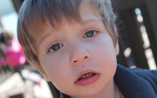 Какие симптомы характерны для афтозного стоматита у детей и как справиться с болезнью
