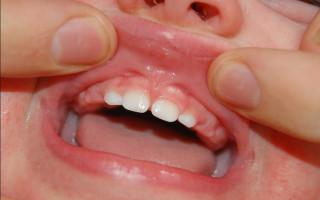 Уздечка верхней губы – когда проводится коррекция