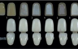 Что являют собой виниры на передние зубы