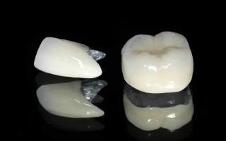 Какие коронки на зубы лучше выбрать