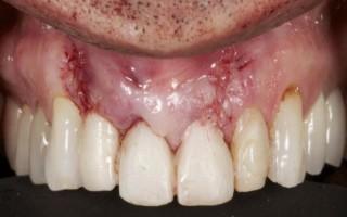Как избавиться от отечности после установки имплантата зуба