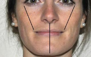 Почему появляется асимметрия губ и что с ней делать