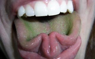 Из-за чего на языке появляется налет зеленого цвета и как от него избавиться