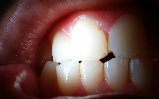 Что необходимо сделать в случае отколовшейся зубной эмали