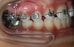 Применение имплантов в ортодонтии