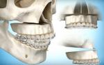 Хирургические операции для исправления неправильного прикуса