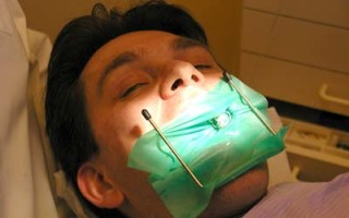 Что такое мертвый зуб и стоит ли ставить на него коронку
