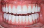 Плюсы и минусы съемных зубных протезов, какие конструкции лучше выбирать