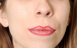 Причины появления белого налета на губах и его лечение